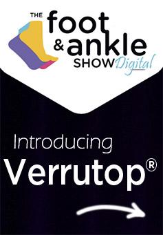 Introducing Verrutop Video